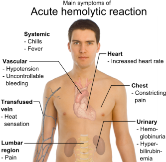 ACUTE HEMOLYTIC REACTION