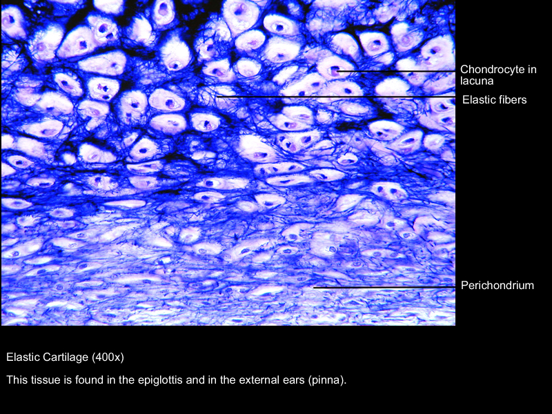 Go Back > Gallery For > Fibrocartilage 400x Labeled